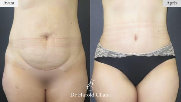 abdominoplastie avant apres abdominoplastie paris docteur harold chatel chirurgien esthetique paris 16