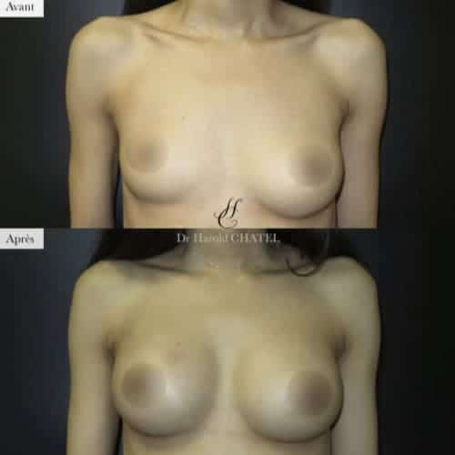 asymetrie seins operation asymetrie seins avant apres asymetrie seins paris docteur harold chatel chirurgien esthetique paris 16
