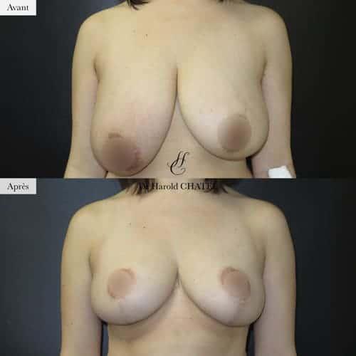 asymetrie seins operation asymetrie seins avant apres asymetrie seins paris docteur harold chatel chirurgien plasticien paris 16