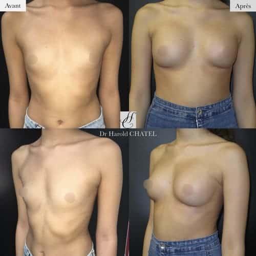 augmentation mammaire composite avant apres augmentation mammaire prothese et graisse docteur harold chatel chirurgien plasticien paris 16
