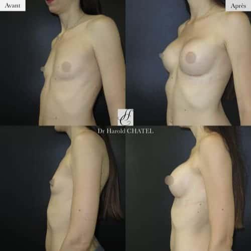 augmentation mammaire protheses avant apres augmentation mammaire implant augmentation mammaire protheses paris docteur harold chatel chirurgien esthetique paris 16