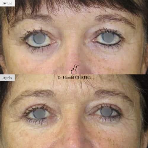 blepharoplastie avant apres blepharoplastie inferieure blepharoplastie superieure docteur harold chatel chirurgien esthetique paris 16