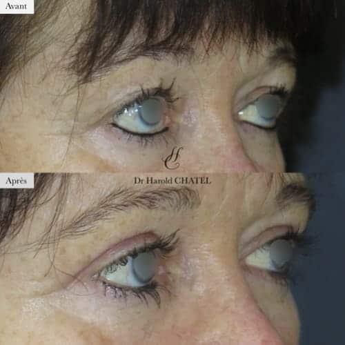 blepharoplastie avant apres blepharoplastie inferieure blepharoplastie superieure docteur harold chatel chirurgien plasticien paris 16