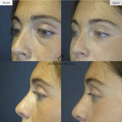 blepharoplastie avant apres blepharoplastie superieure blepharoplastie inferieure docteur harold chatel chirurgien esthetique paris 16