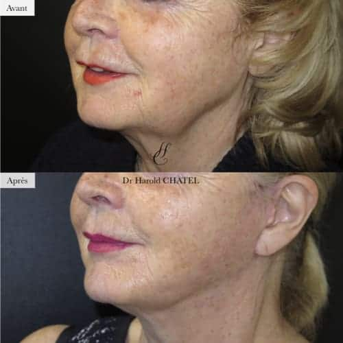 lifting cervico facial avant apres lifting cervico facial prix docteur harold chatel chirurgien esthetique paris 16