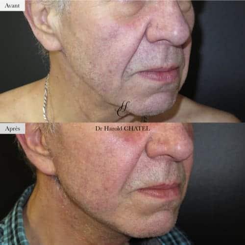 lifting cervico facial avant apres lifting cervico facial prix docteur harold chatel chirurgien plasticien paris 16