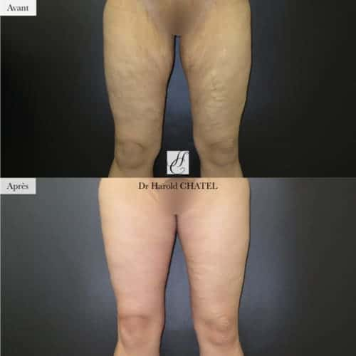 lifting face externe cuisses avant apres cruroplastie avant apres cruroplastie paris 16 docteur harold chatel chirurgien esthetique paris 16