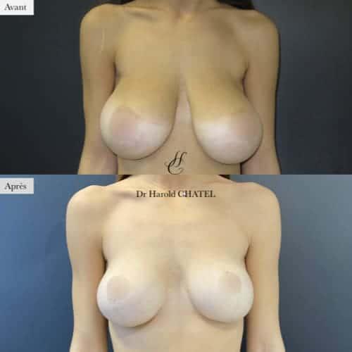 lifting mammaire avant apres lifting des seins cure de ptose mammaire avant apres docteur harold chatel chirurgien esthetique paris 16