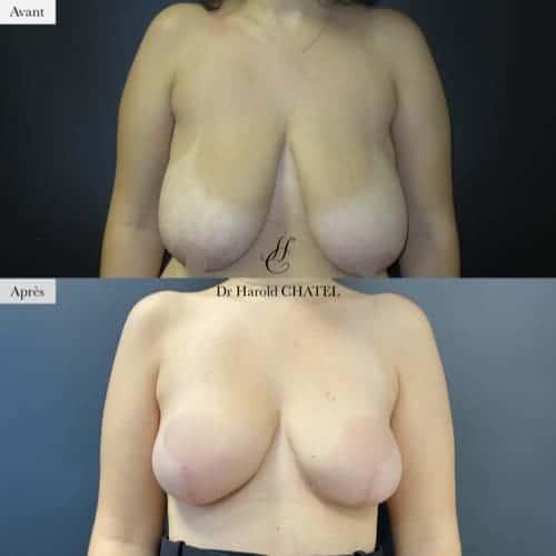 lifting mammaire avant apres lifting des seins cure de ptose mammaire avant apres docteur harold chatel chirurgien plasticien paris 16