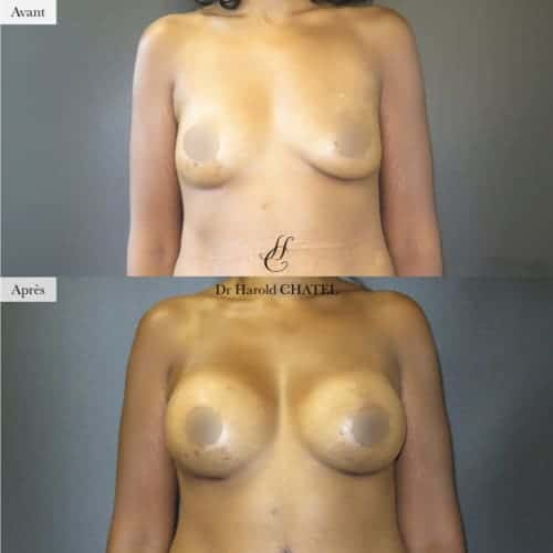 lifting mammaire avant apres lifting des seins implant mammaire cure de ptose mammaire avant apres docteur harold chatel chirurgien plasticien paris 16