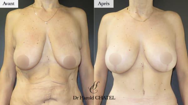 lifting mammaire avant apres lifting des seins lifting de seins mixte plastie et protheses docteur harold chatel chirurgien esthetique paris 16