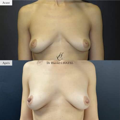 mamelons invagines avant apres docteur harold chatel chirurgien esthetique paris 16 mamelons plats mamelons ombiliques mamelon inverse mamelon retracte teton ombilique teton inverse teton plat