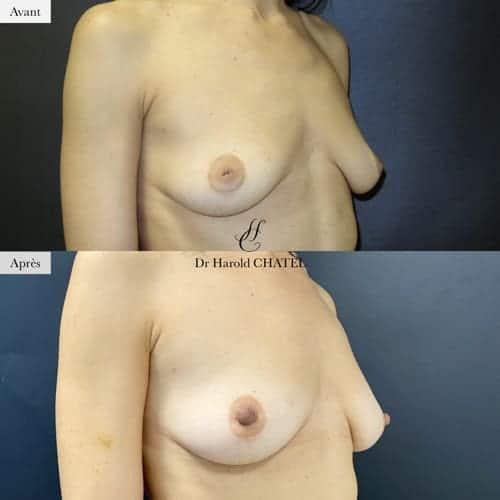 mamelons invagines avant apres docteur harold chatel mamelons plats mamelons ombiliques mamelon inverse mamelon retracte teton ombilique teton inverse teton plat
