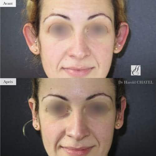 otoplastie avant apres otoplastie paris 16 chirurgie oreilles decollees docteur harold chatel chirurgien esthetique paris 16
