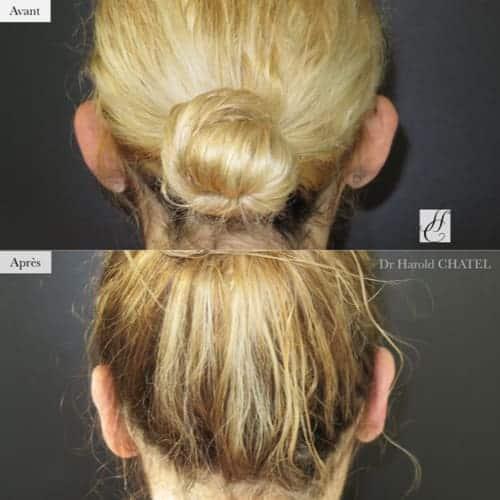 otoplastie avant apres otoplastie paris 16 chirurgie oreilles decollees docteur harold chatel chirurgien plasticien paris 16