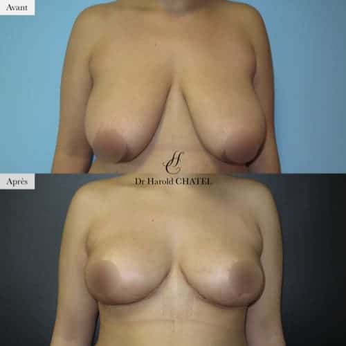 reduction mammaire avant apres reduction mammaire paris docteur harold chatel chirurgien esthetique paris 16