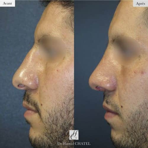 rhinoplastie avant apres rhinoplastie paris 16 rhinoplastie homme docteur harold chatel chirurgien esthetique paris 16