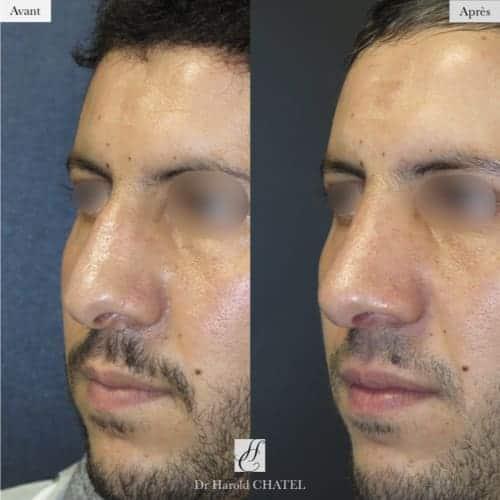 rhinoplastie avant apres rhinoplastie paris 16 rhinoplastie homme docteur harold chatel chirurgien plasticien paris 16