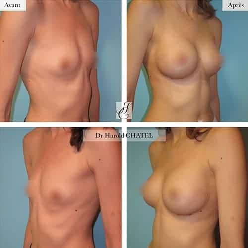 augmentation mammaire avant apres augmentation mammaire implant augmentation mammaire protheses paris docteur harold chatel chirurgien esthetique paris 16 1