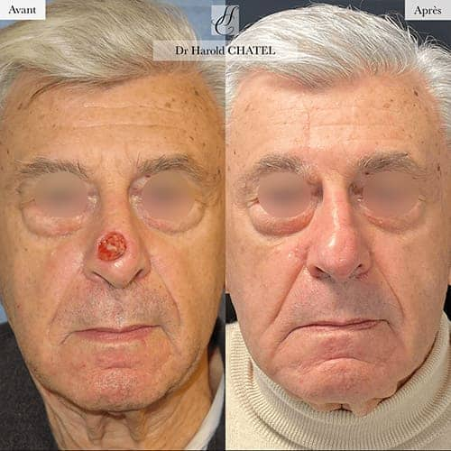 chirurgie reparatrice cicatrice chirurgie reparatrice nez chirurgie reparatrice paris chirurgie reparatrice du nez docteur harold chatel chirurgien esthetique visage paris 16 2