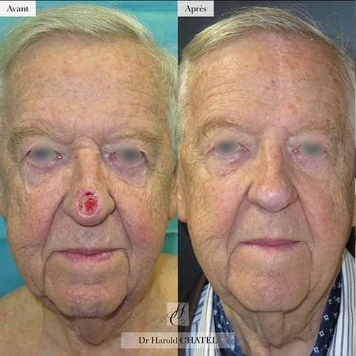 chirurgie reparatrice cicatrice chirurgie reparatrice nez chirurgie reparatrice paris chirurgie reparatrice du nez docteur harold chatel chirurgien esthetique visage paris 16 4