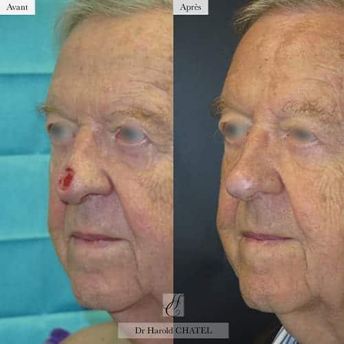 chirurgie reparatrice cicatrice chirurgie reparatrice nez chirurgie reparatrice paris chirurgie reparatrice du nez docteur harold chatel chirurgien esthetique visage paris 16 5