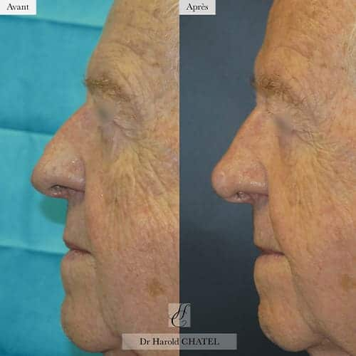 chirurgie reparatrice cicatrice chirurgie reparatrice nez chirurgie reparatrice paris chirurgie reparatrice du nez docteur harold chatel chirurgien esthetique visage paris 16 6