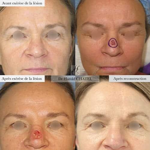 chirurgie reparatrice cicatrice chirurgie reparatrice nez chirurgie reparatrice paris chirurgie reparatrice du nez docteur harold chatel chirurgien esthetique visage paris 16 7