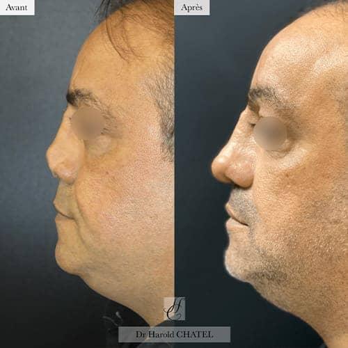 chirurgie reparatrice cicatrice chirurgie reparatrice nez chirurgie reparatrice paris chirurgie reparatrice du nez docteur harold chatel chirurgien esthetique visage paris 16 8