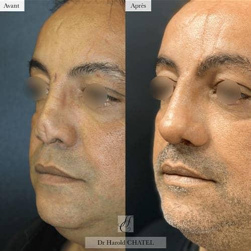 chirurgie reparatrice cicatrice chirurgie reparatrice nez chirurgie reparatrice paris chirurgie reparatrice du nez docteur harold chatel chirurgien esthetique visage paris 16 9