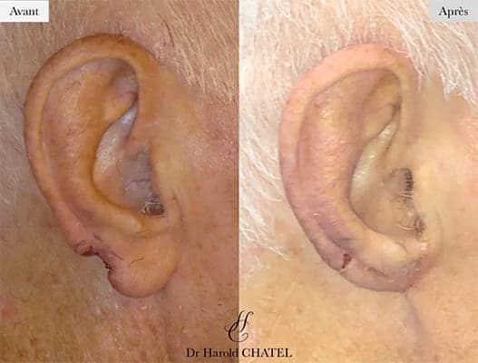 chirurgie reparatrice cicatrice chirurgie reparatrice paris chirurgie reparatrice oreille docteur harold chatel chirurgien esthetique visage paris 16 1