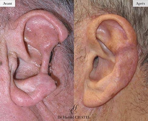 chirurgie reparatrice cicatrice chirurgie reparatrice paris chirurgie reparatrice oreille docteur harold chatel chirurgien esthetique visage paris 16 2