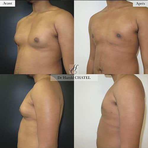 gynecomastie homme gynecomastie avant apres gynecomastie bilaterale gynecomastie apres operation dr harold chatel chirurgien esthetique homme paris 16 1