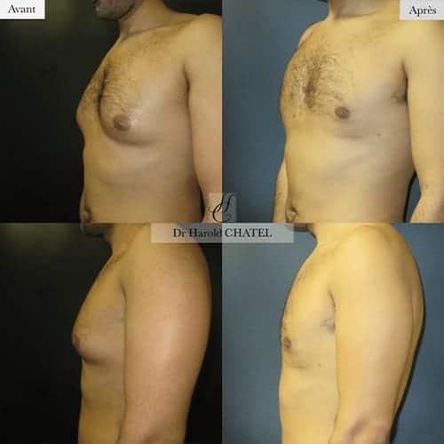 gynecomastie homme gynecomastie avant apres gynecomastie bilaterale gynecomastie apres operation dr harold chatel chirurgien esthetique homme paris 16 3