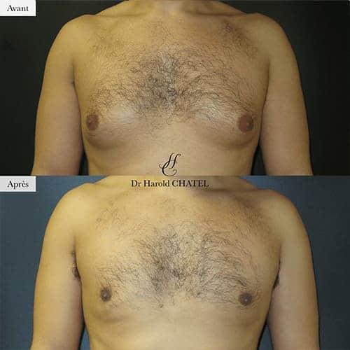 gynecomastie homme gynecomastie avant apres gynecomastie bilaterale gynecomastie apres operation dr harold chatel chirurgien esthetique homme paris 16 4