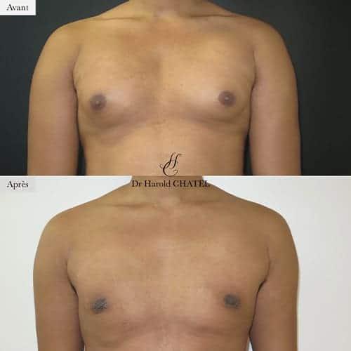 gynecomastie homme gynecomastie avant apres gynecomastie bilaterale gynecomastie apres operation dr harold chatel chirurgien esthetique homme paris 16 5