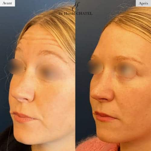 injection botox avant apres injection de toxine botulique prix injection toxine botulique jambes injection botox paris medecine esthetique visage dr harold chatel chirurgien esthetique paris 16