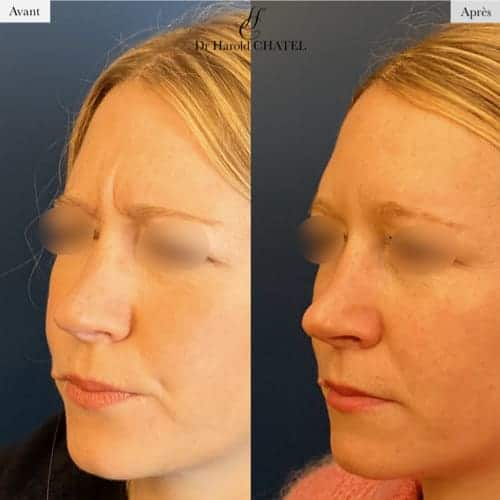 injection botox avant apres injection de toxine botulique prix injection toxine injection botox paris medecine esthetique visage docteur harold chatel chirurgien esthetique paris 16