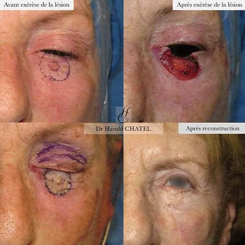 lesion de la peau lesion cutanee photo lesion cutanee visage docteur harold chatel chirurgien esthetique visage paris 16 1