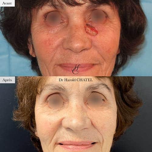lesion de la peau lesion cutanee photo lesion cutanee visage docteur harold chatel chirurgien esthetique visage paris 16 2