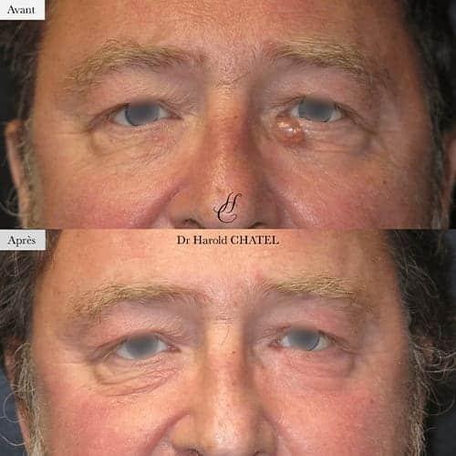 lesion de la peau lesion cutanee photo lesion cutanee visage docteur harold chatel chirurgien esthetique visage paris 16 3