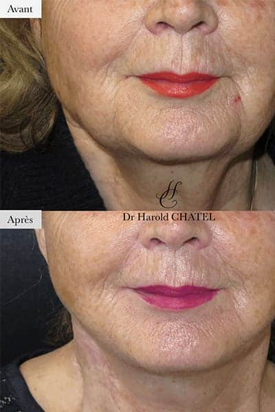 lifting cervico facial avant apres lifting cervico facial prix docteur harold chatel chirurgien esthetique visage paris 16