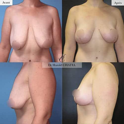 lifting mammaire avant apres lifting des seins cure de ptose mammaire avant apres docteur harold chatel chirurgien esthetique seins paris 16