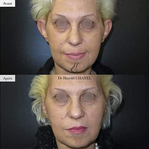 otoplastie avant apres otoplastie paris 16 chirurgie oreilles decollees docteur harold chatel chirurgien esthetique visage paris 16