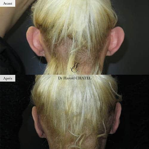 otoplastie avant apres otoplastie paris 16 chirurgie oreilles decollees paris docteur harold chatel chirurgien esthetique visage paris 16