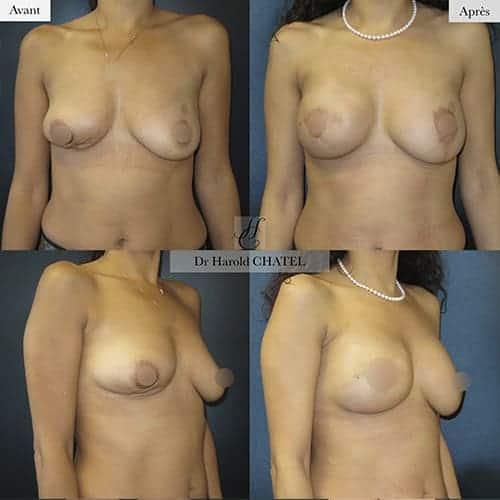 reconstruction mammaire par prothese reconstruction mammaire apres mastectomie reconstruction mammaire apres cancer dr chatel chirurgien esthetique seins paris 16
