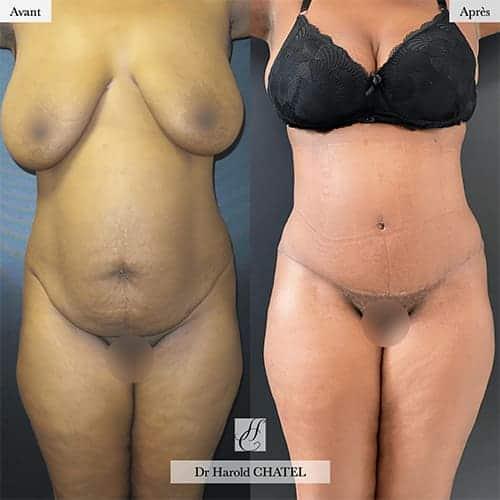 abdominoplastie cicatrice abdominoplastie 1 an apres abdominoplastie nombril docteur harold chatel chirurgien esthetique paris 16