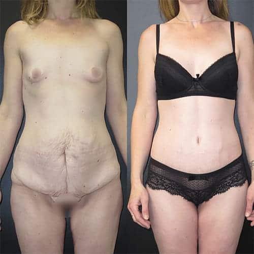 bodylift avant apres bodylift apres sleeve bodylift cicatrice docteur harold chatel chirurgien esthetique paris 1