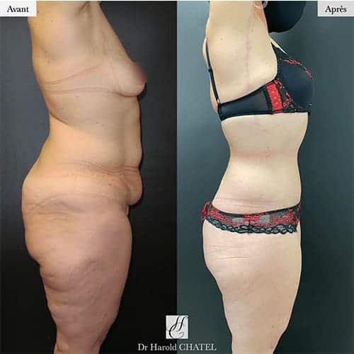 bodylift avant apres bodylift apres sleeve bodylift cicatrice docteur harold chatel chirurgien esthetique paris 11