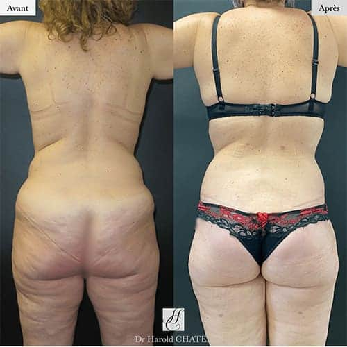 bodylift avant apres bodylift apres sleeve bodylift cicatrice docteur harold chatel chirurgien esthetique paris 13
